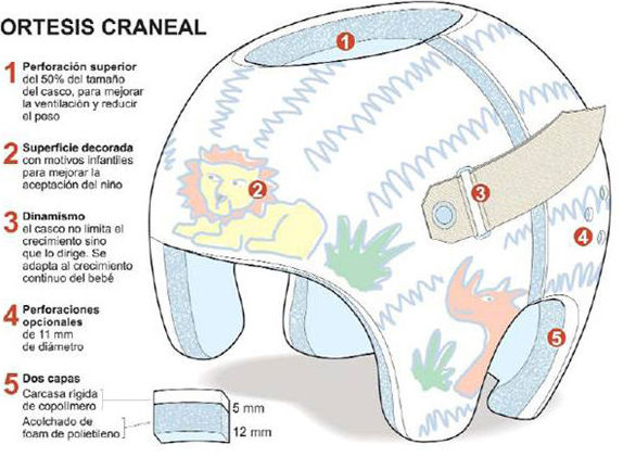 partes de una ortesis craneal