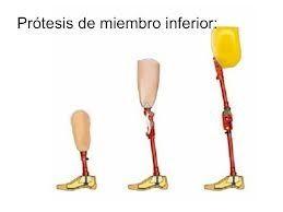 Prótesis Miembro Inferior: TIENDA ONLINE de Ortopedia La Fama