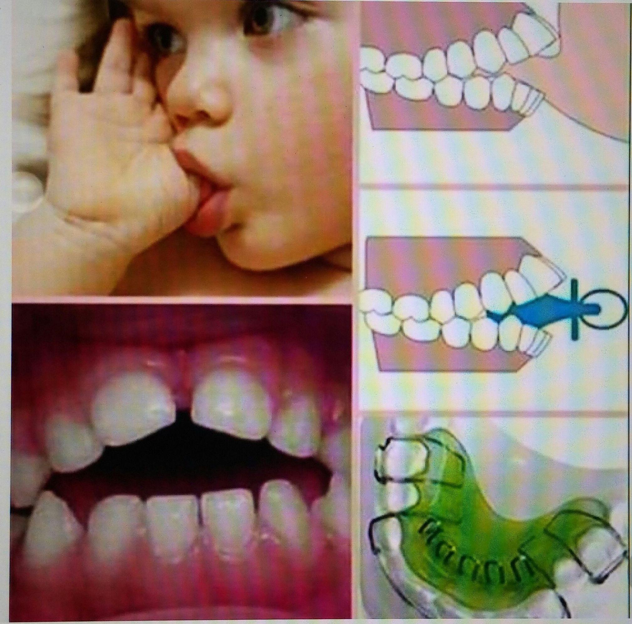 Hábitos de los más pequeños ...muy atentos para corregirlos para que la erupción dental no sea alterada