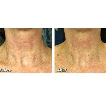 Cirugía dermatológica y láser: Tratamientos de Centro Dermatológico Verónica Díaz