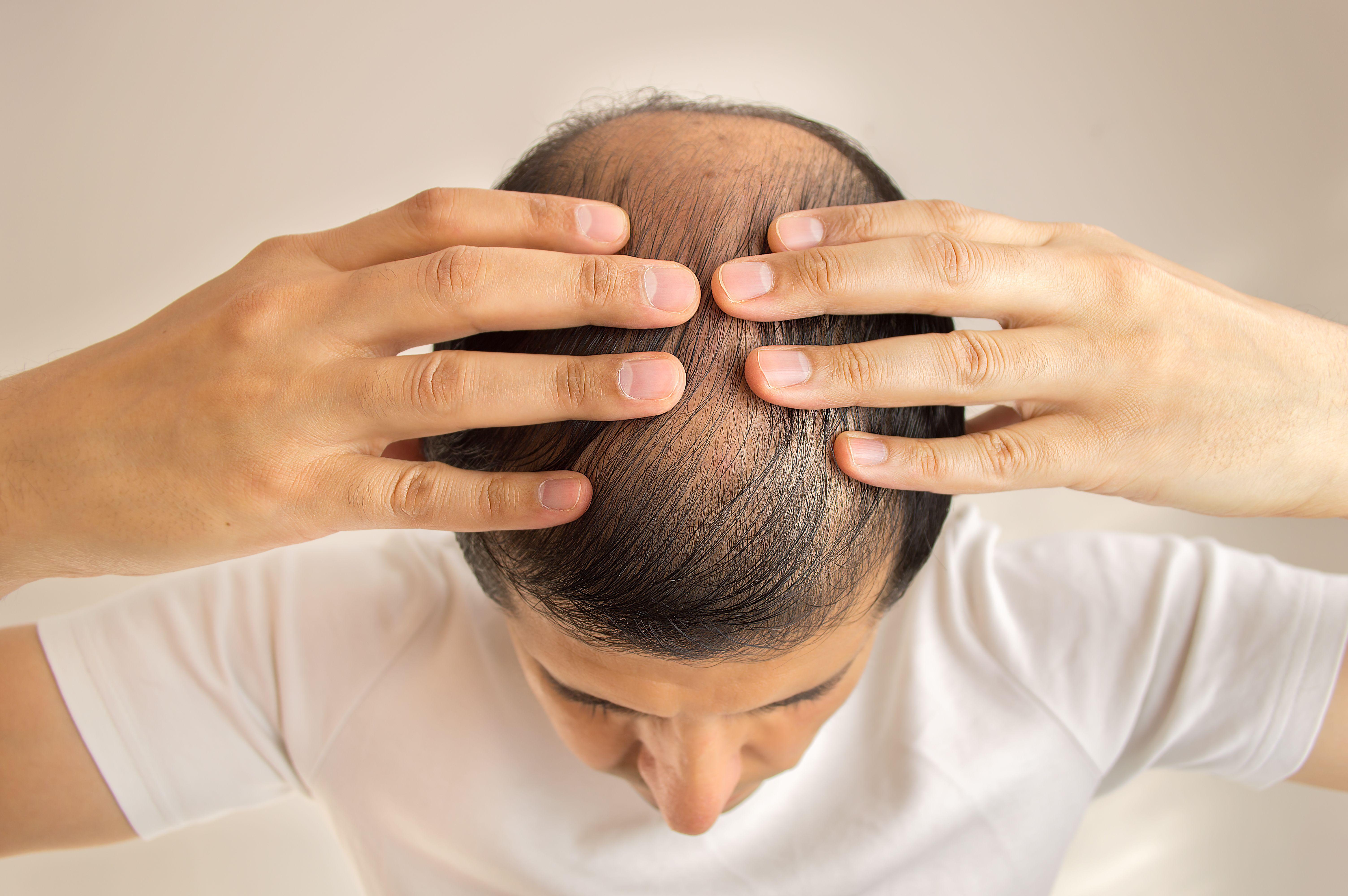 Caída de pelo: Tratamientos de Centro Dermatológico Verónica Díaz