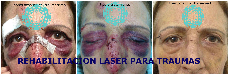 Laserterapia post-traumatismos