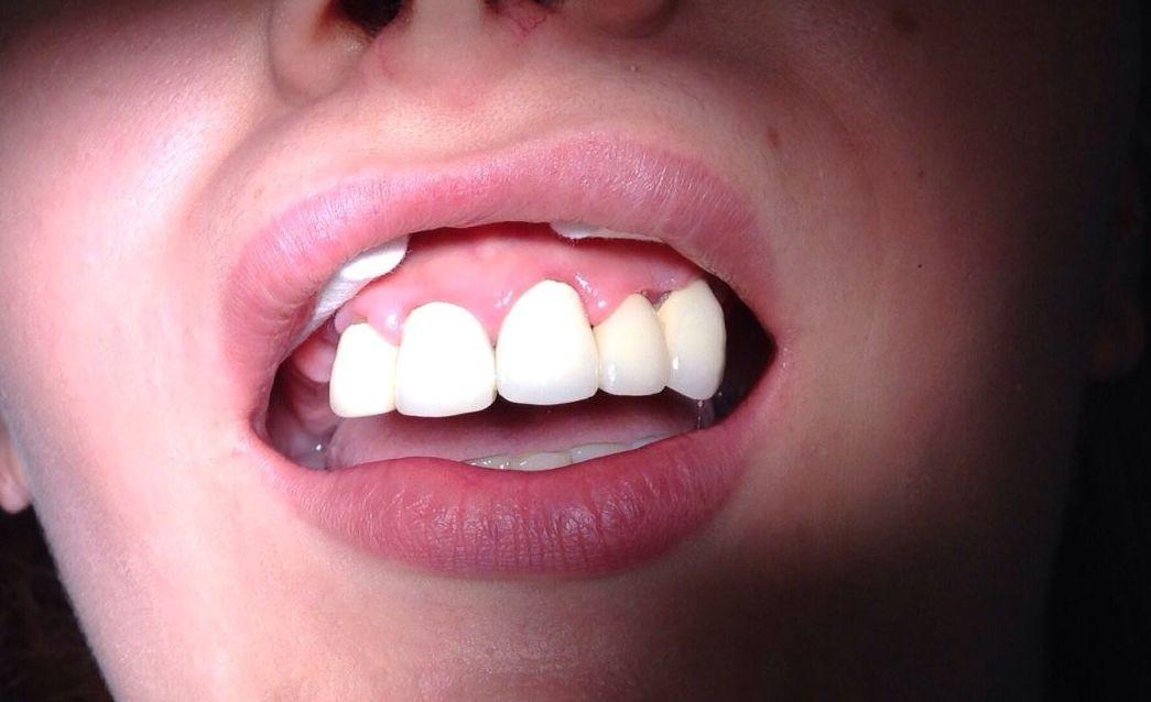 Gingivitis residual tras 15 días de tratamiento antibiótico