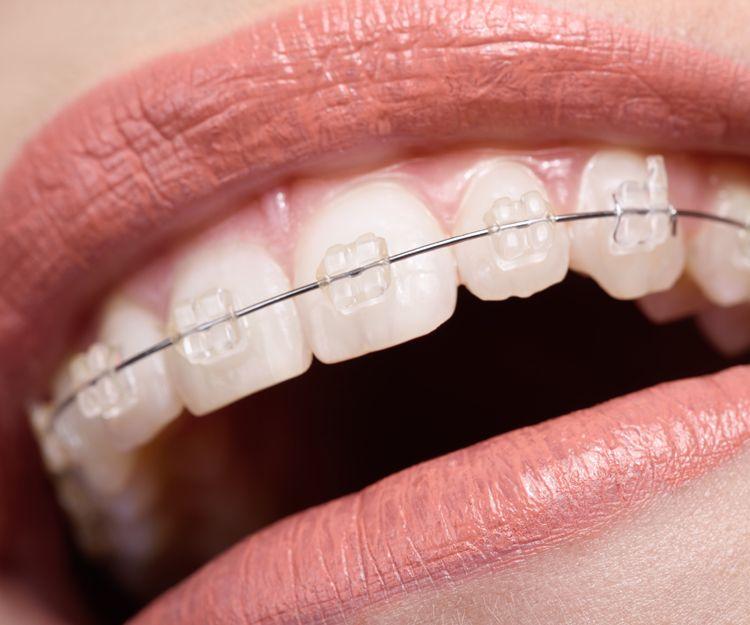 Ortodoncia invisible en Motril