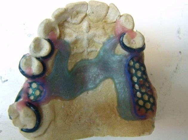 Foto 54 de Consulta de prótesis dentales en Jaén | Dental Tucci