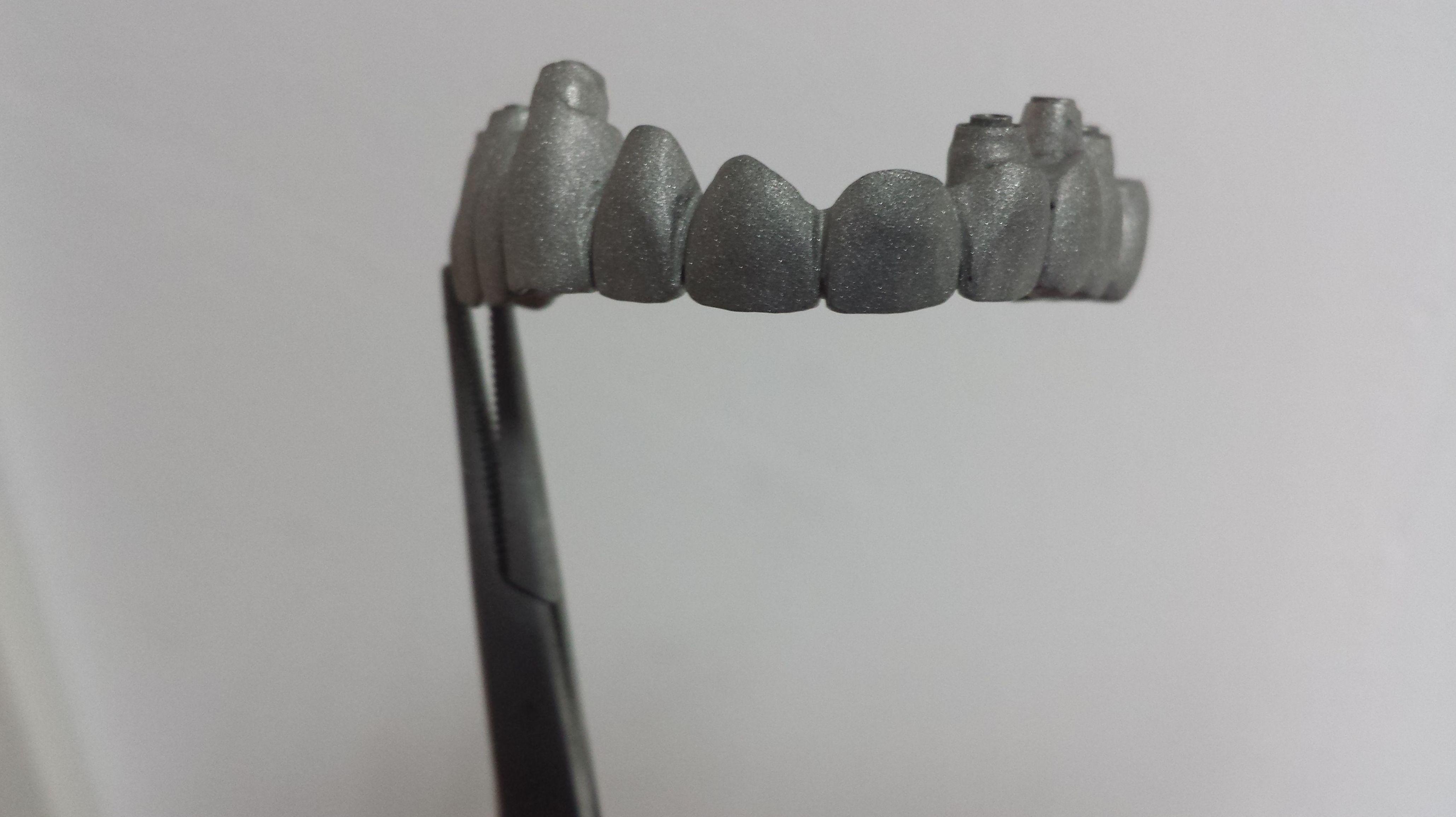 Foto 71 de Consulta de prótesis dentales en Jaén | Dental Tucci