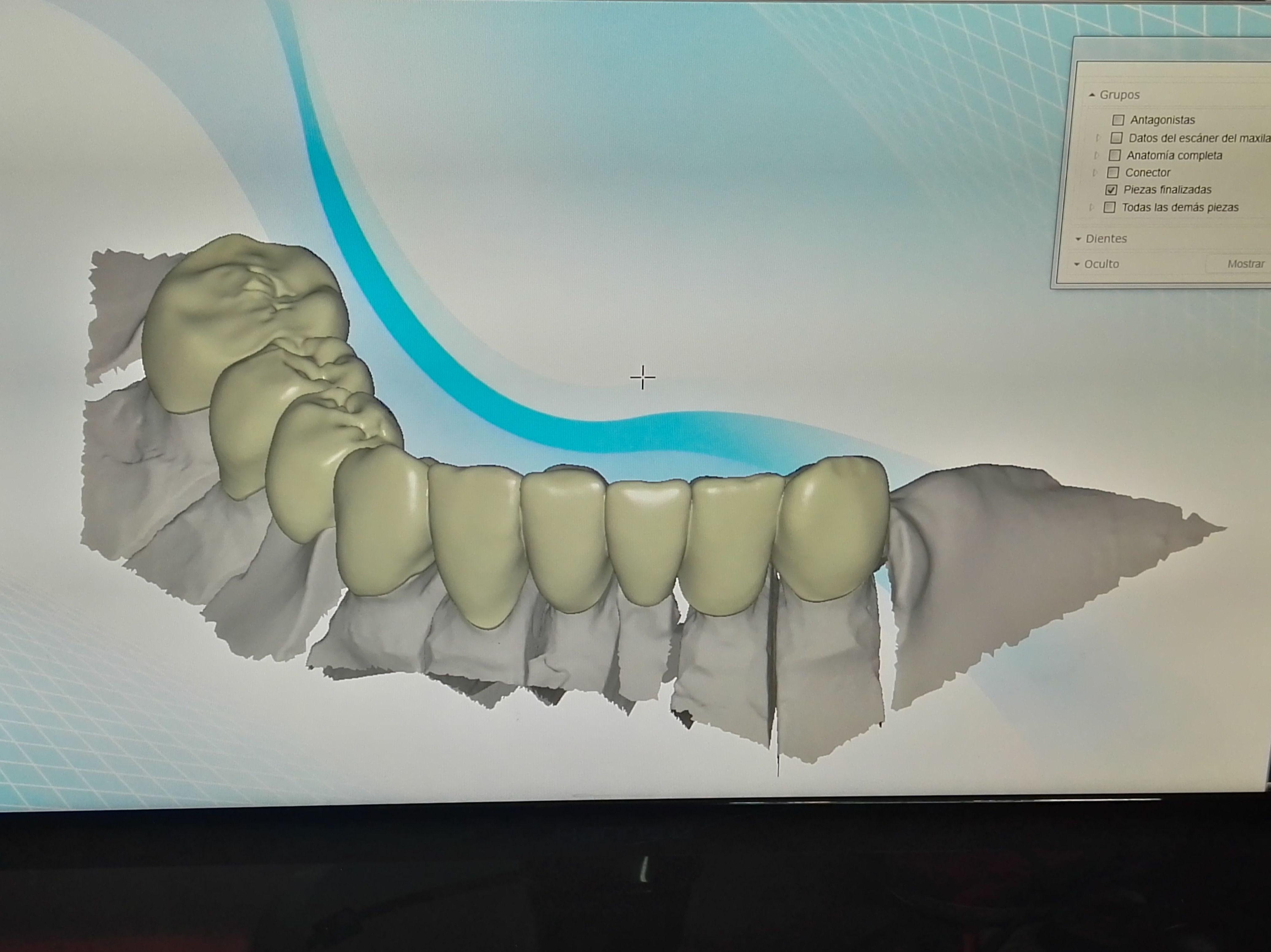 Foto 72 de Consulta de prótesis dentales en Jaén | Dental Tucci