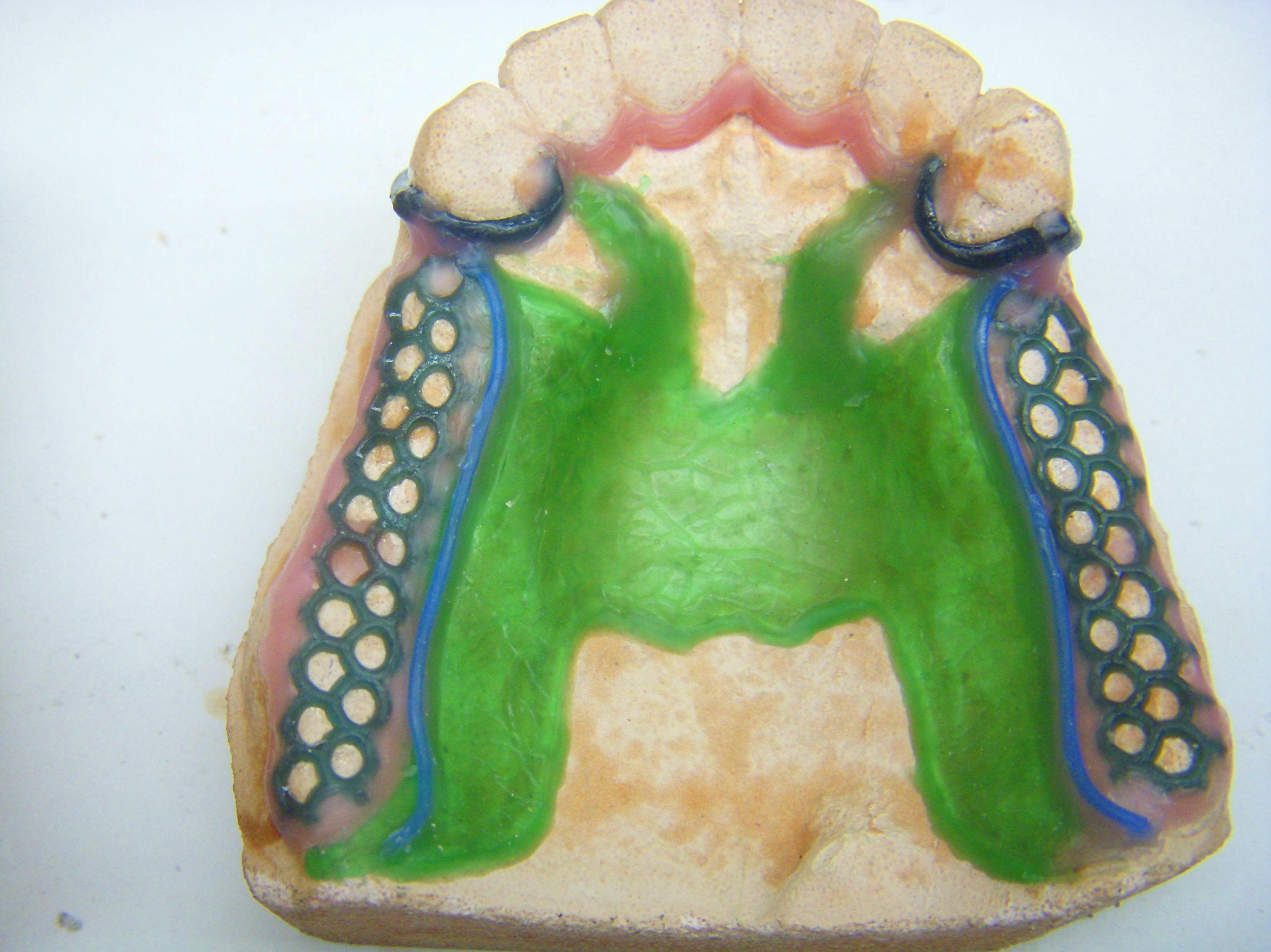 Foto 57 de Consulta de prótesis dentales en Jaén | Dental Tucci