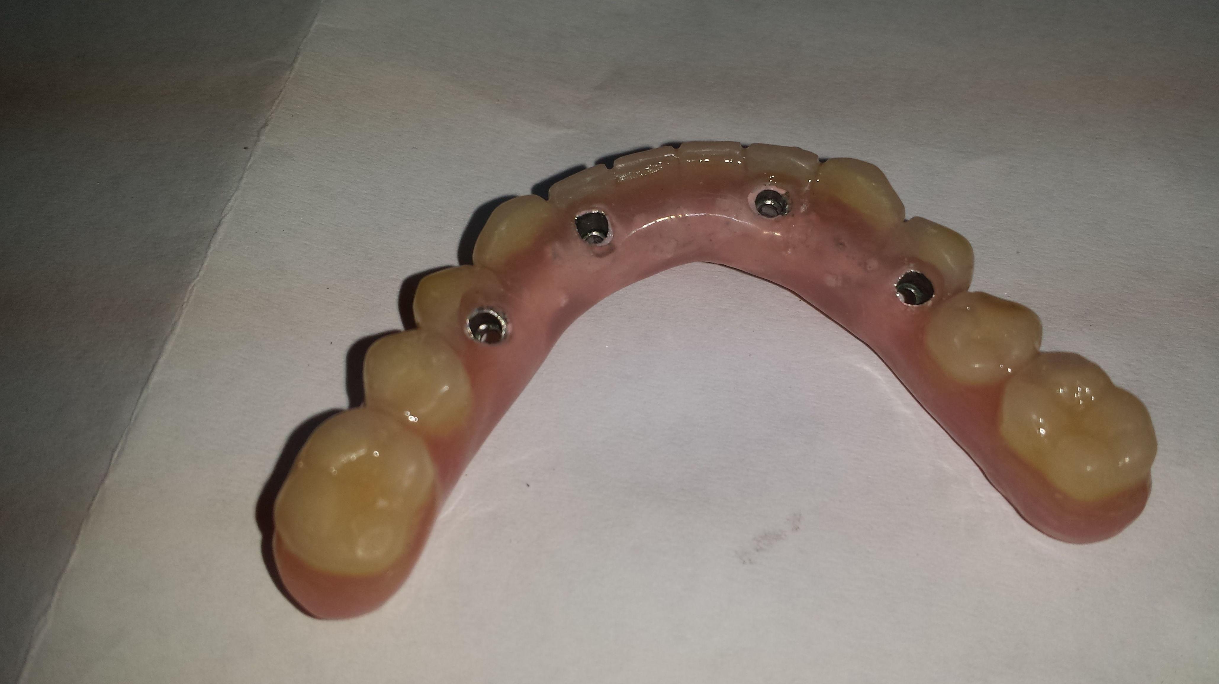 Foto 36 de Consulta de prótesis dentales en Jaén | Dental Tucci