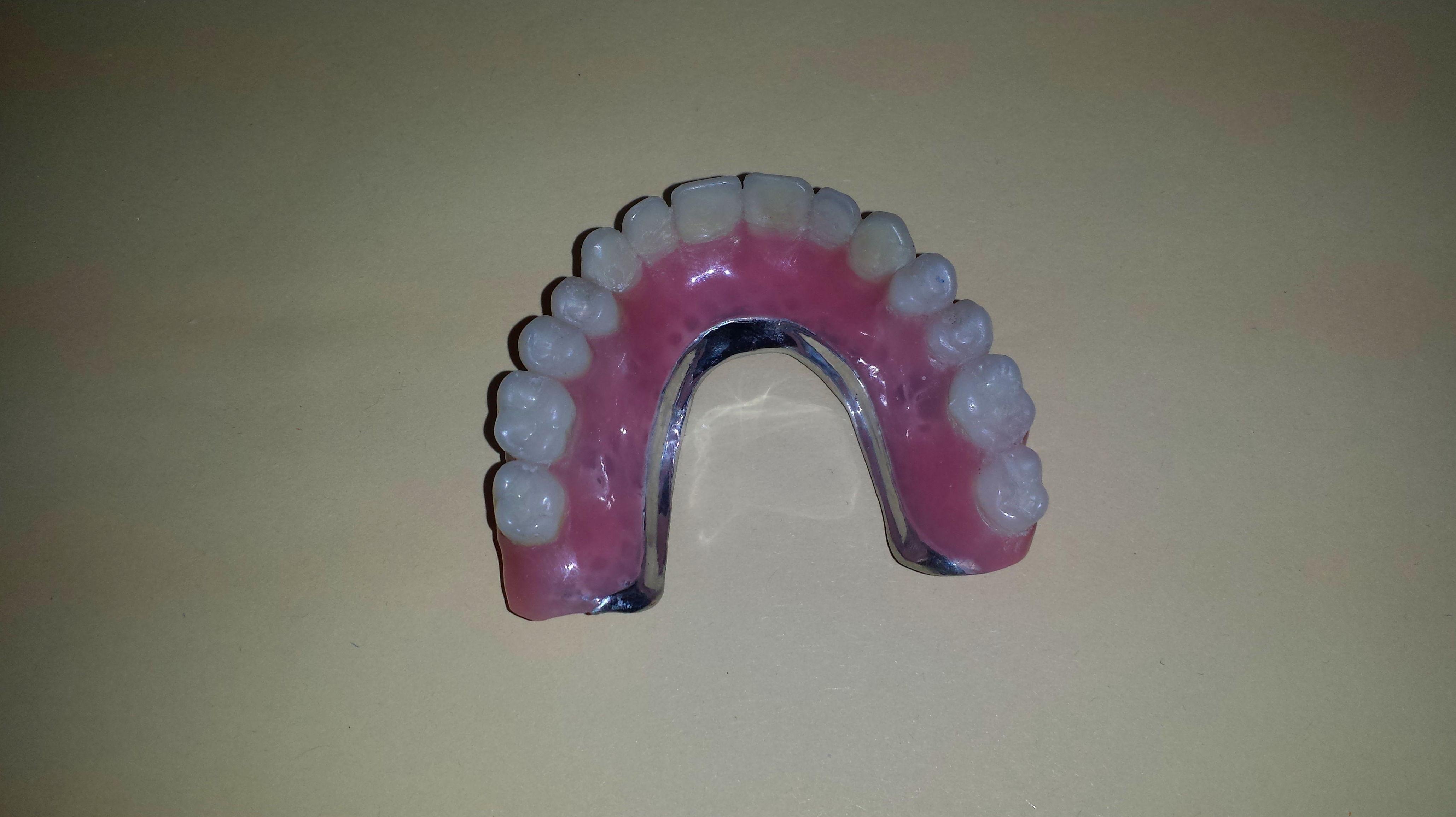Foto 34 de Consulta de prótesis dentales en Jaén | Dental Tucci