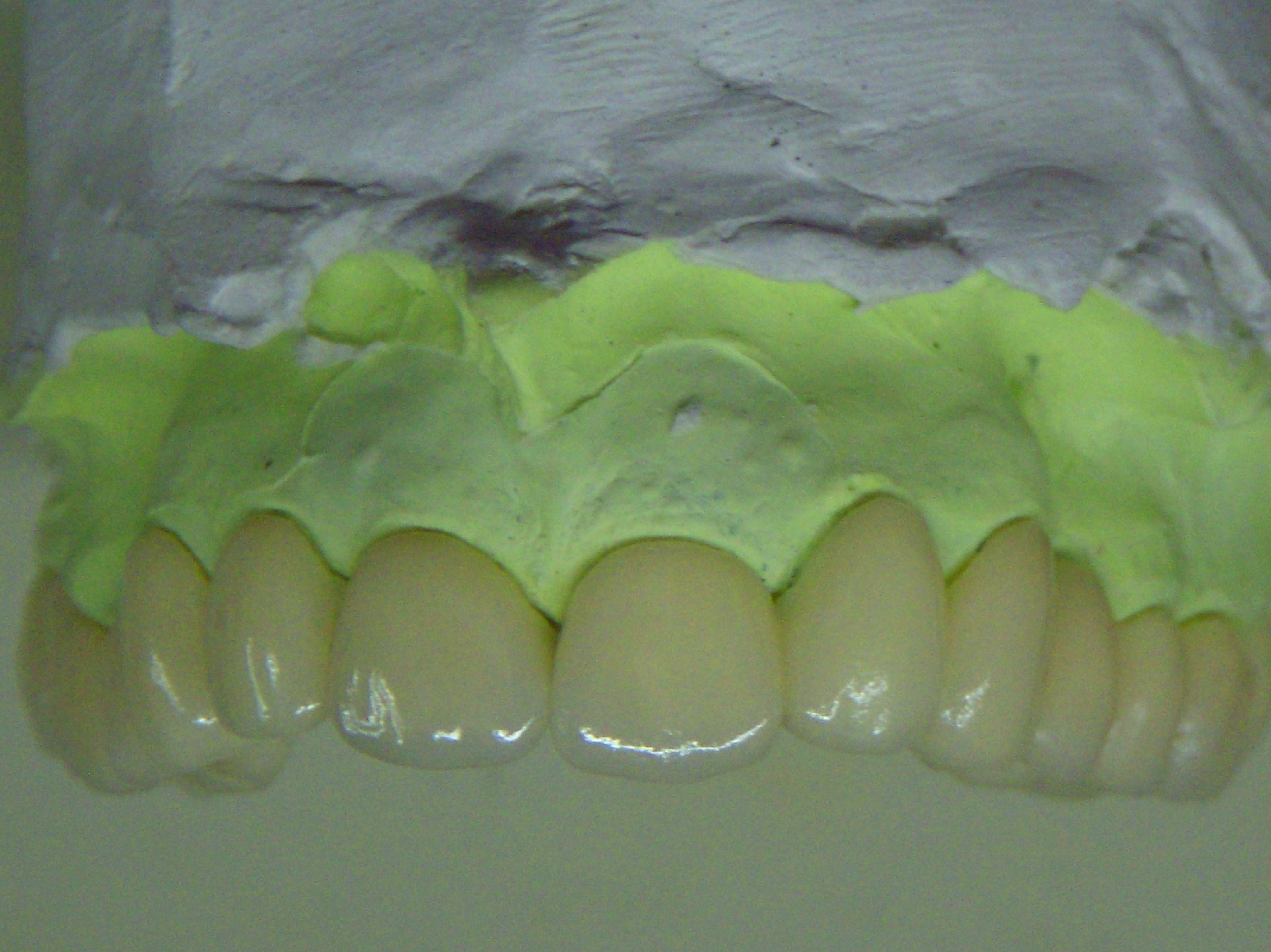 Foto 19 de Consulta de prótesis dentales en Jaén | Dental Tucci
