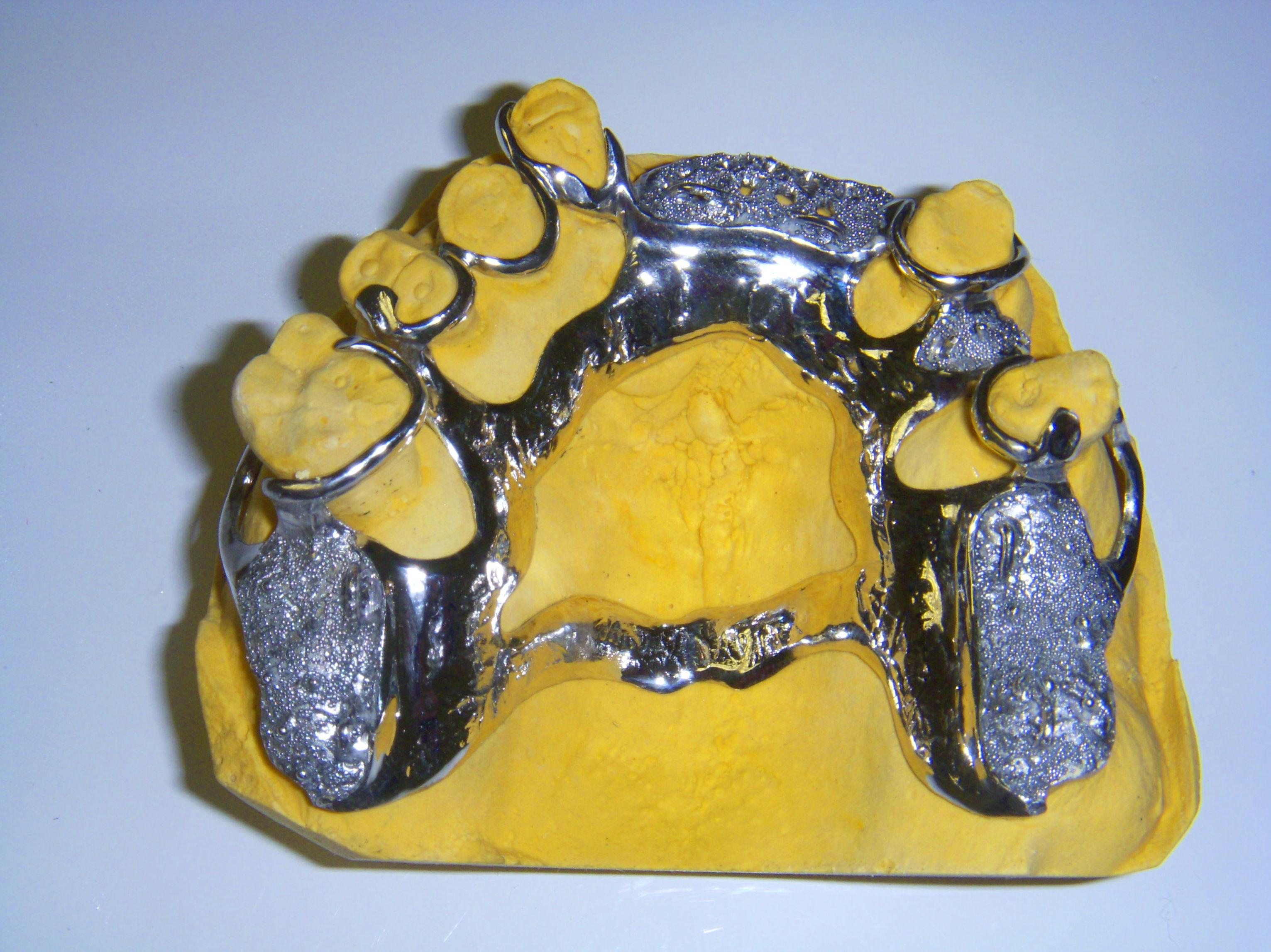 Foto 60 de Consulta de prótesis dentales en Jaén | Dental Tucci