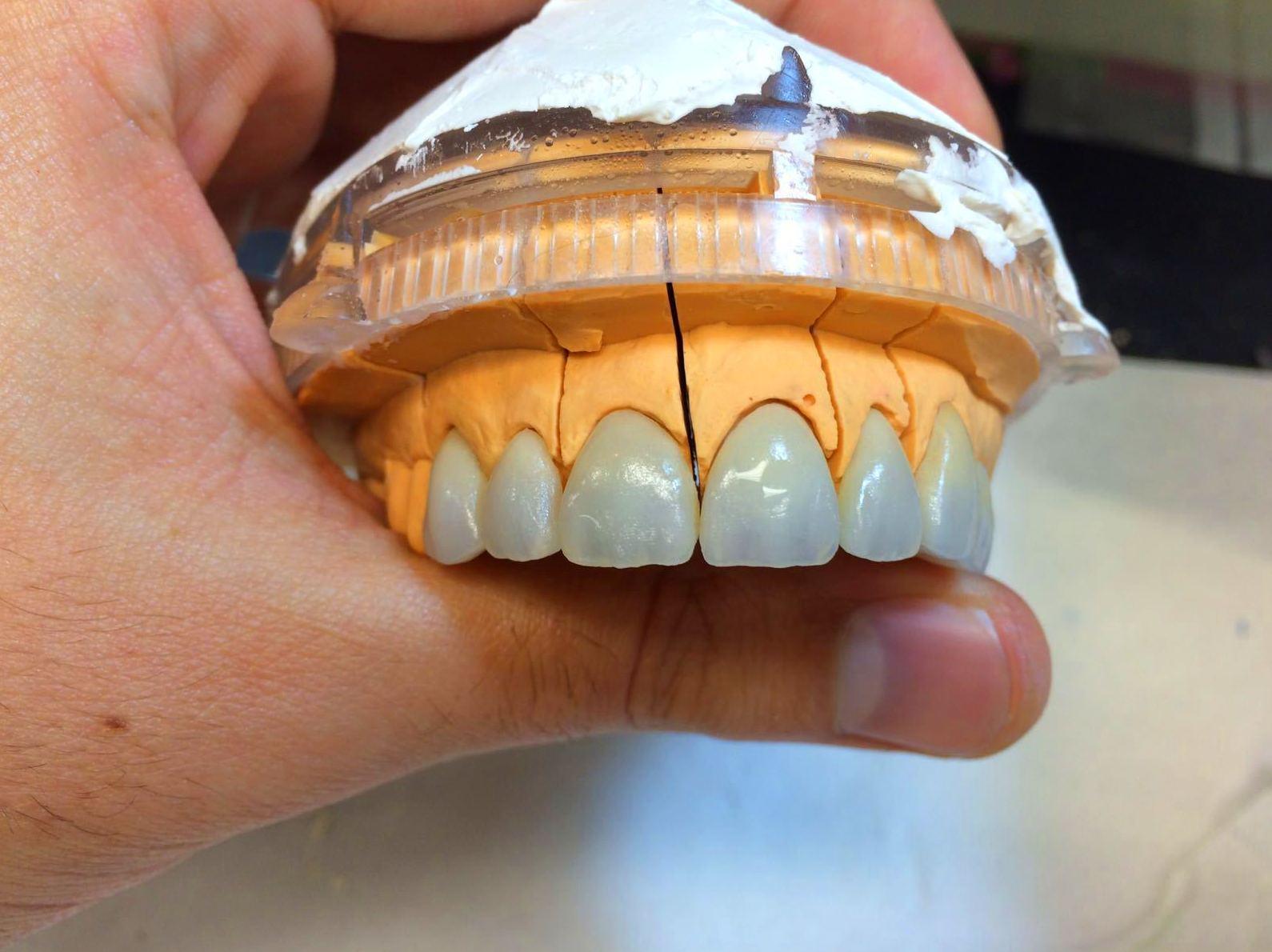 Foto 47 de Consulta de prótesis dentales en Jaén | Dental Tucci