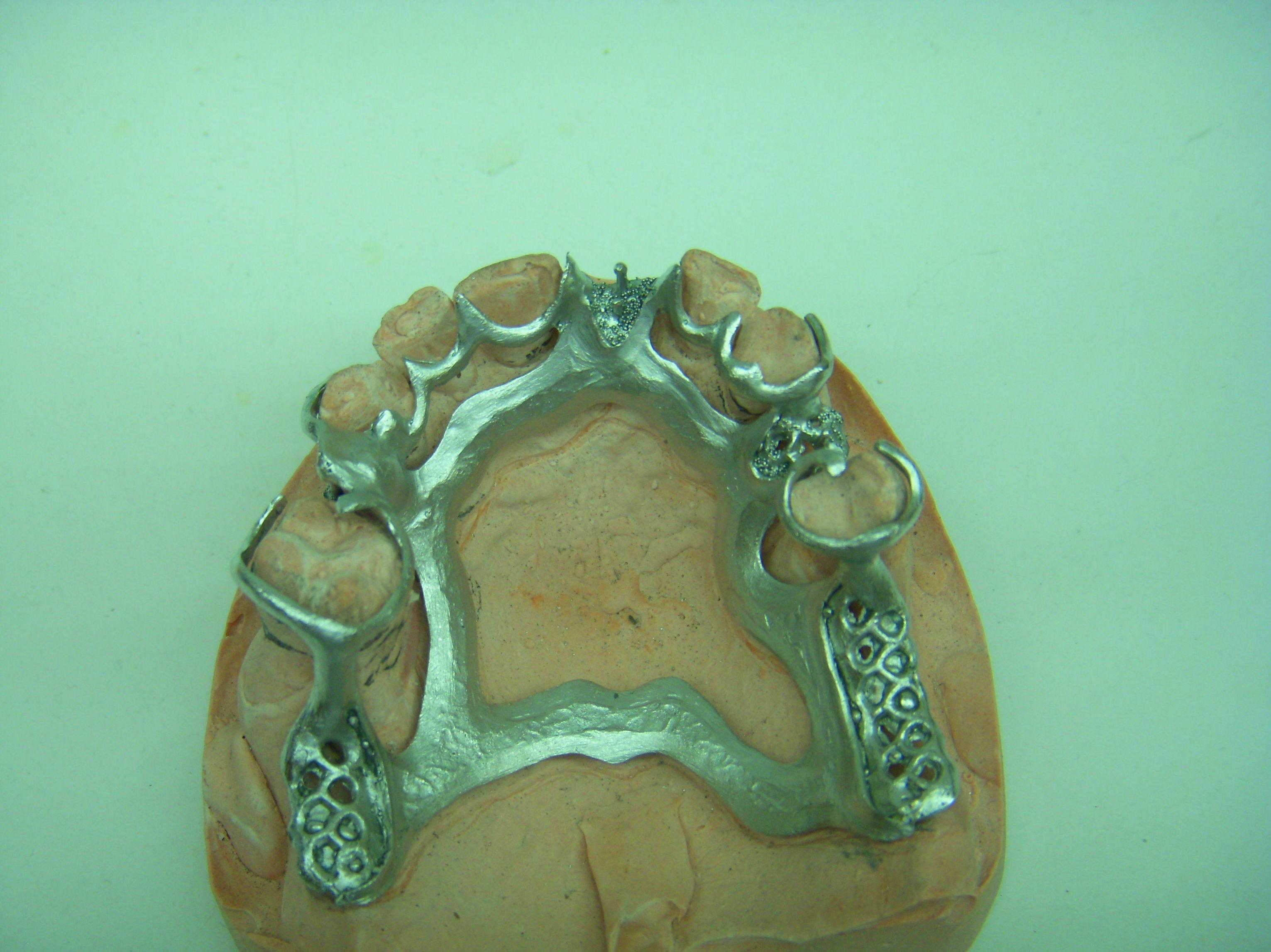 Foto 61 de Consulta de prótesis dentales en Jaén | Dental Tucci