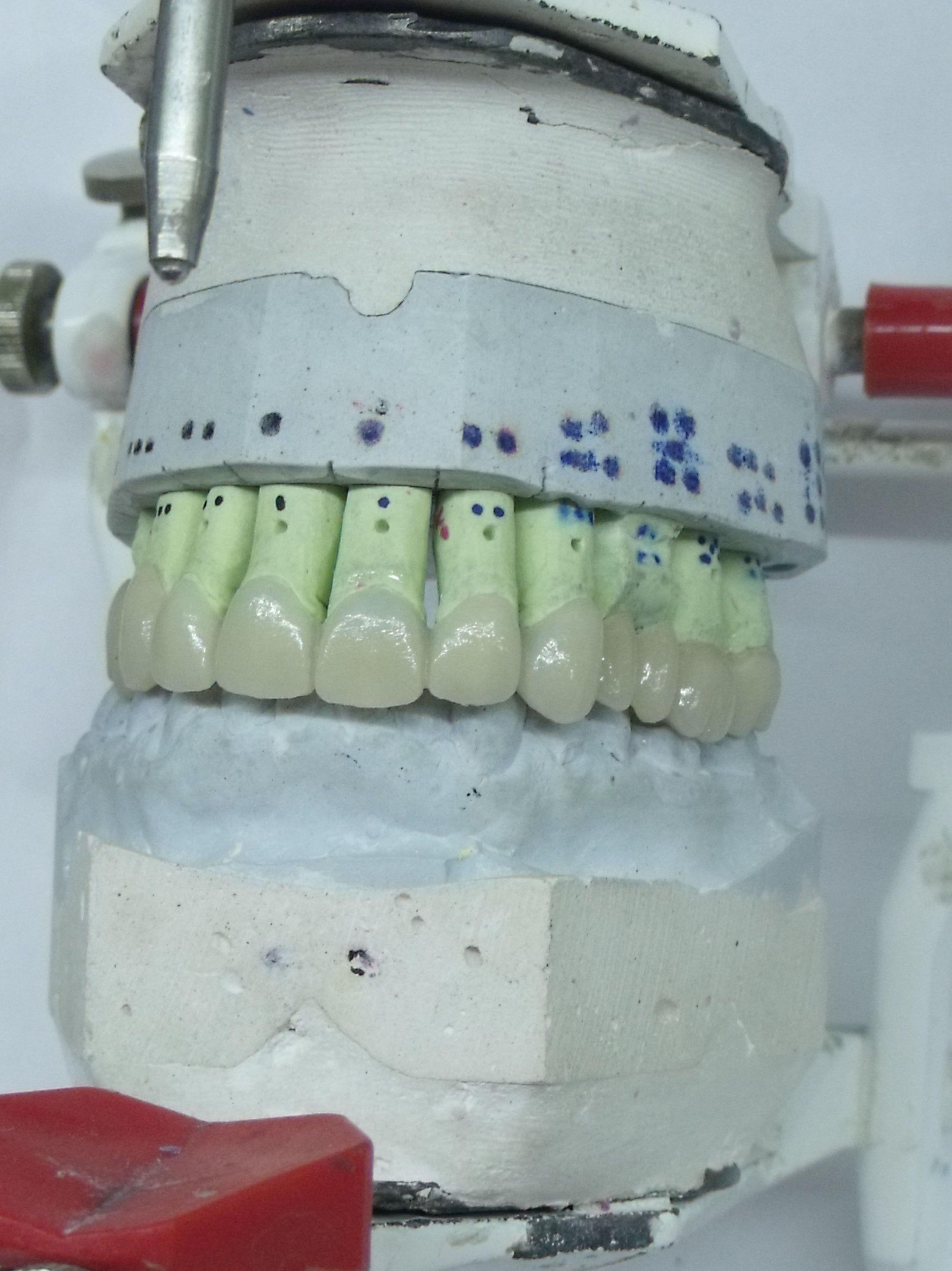 Foto 44 de Consulta de prótesis dentales en Jaén   Dental Tucci