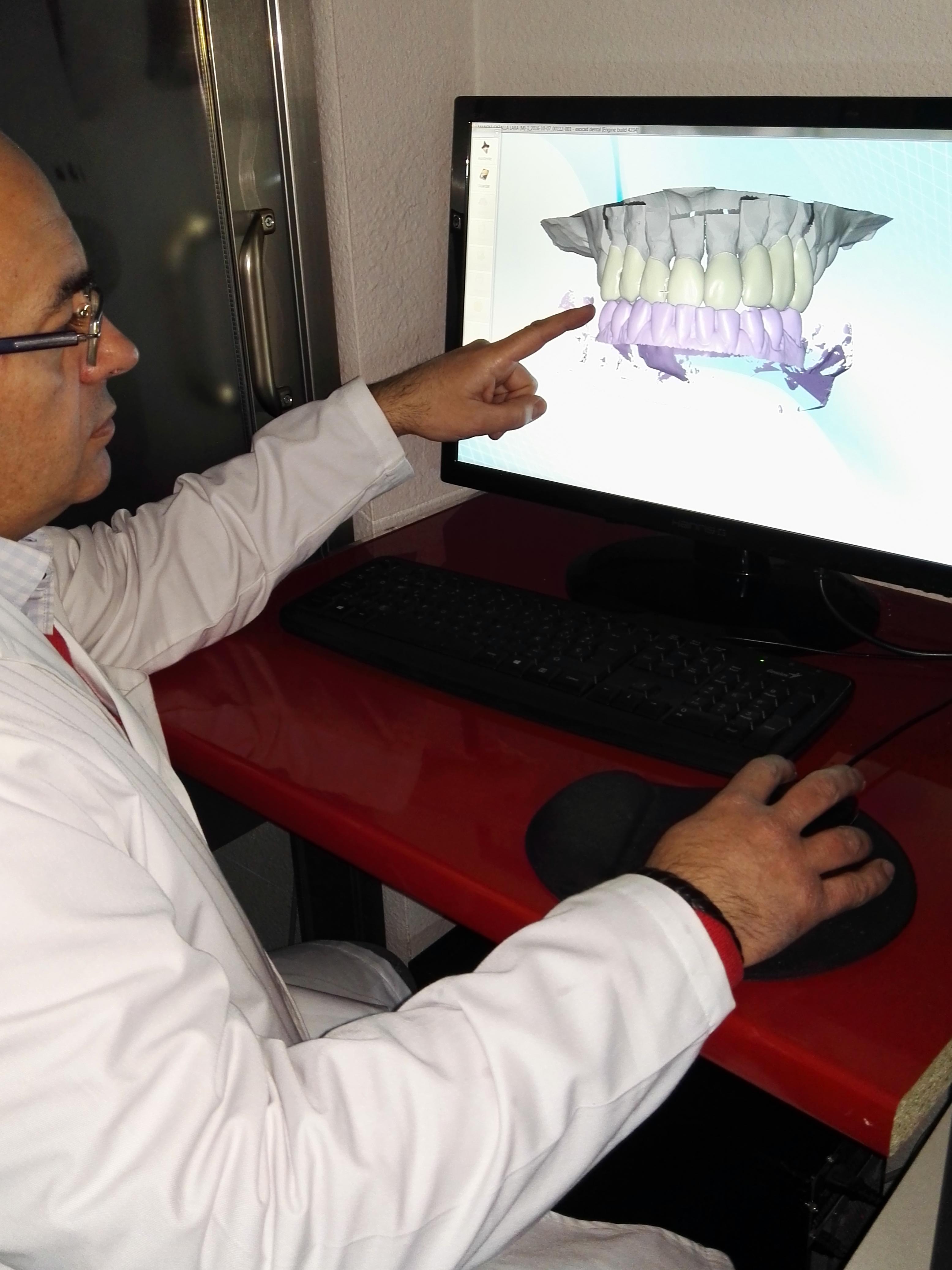 Foto 26 de Consulta de prótesis dentales en Jaén | Dental Tucci