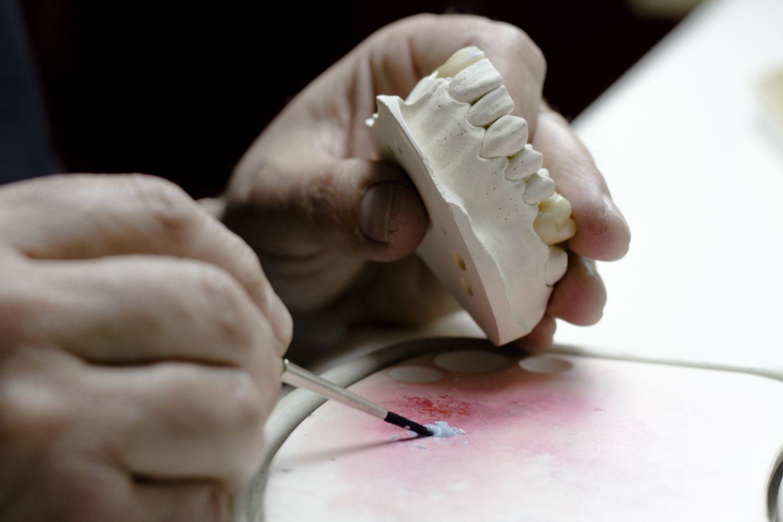 Fabricación de prótesis dentales en Jaén