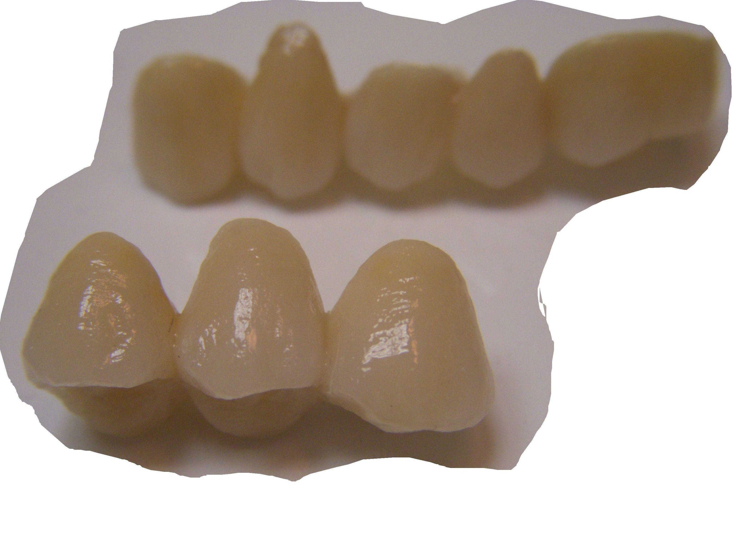 Foto 41 de Consulta de prótesis dentales en Jaén | Dental Tucci