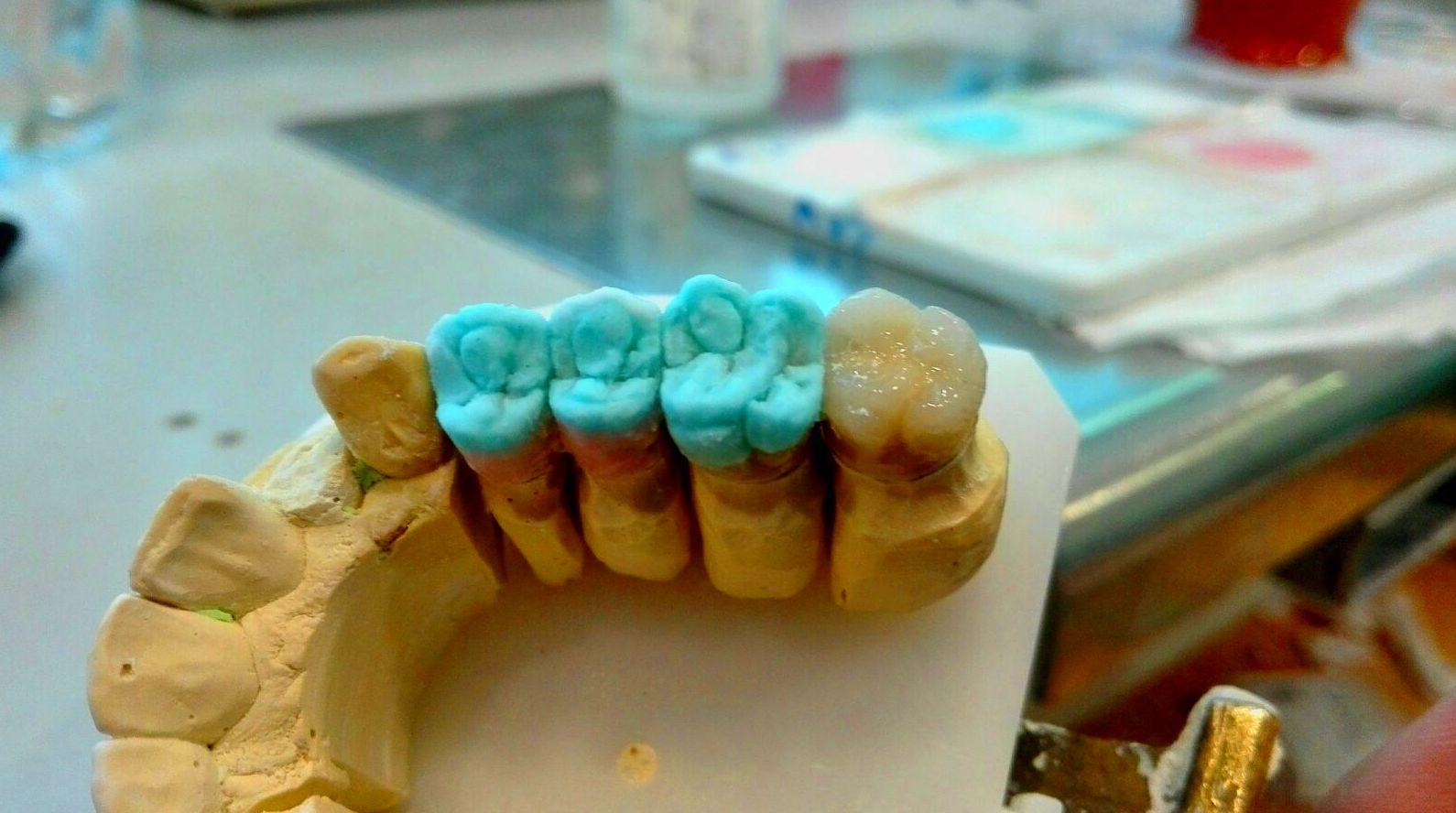 Foto 40 de Consulta de prótesis dentales en Jaén | Dental Tucci