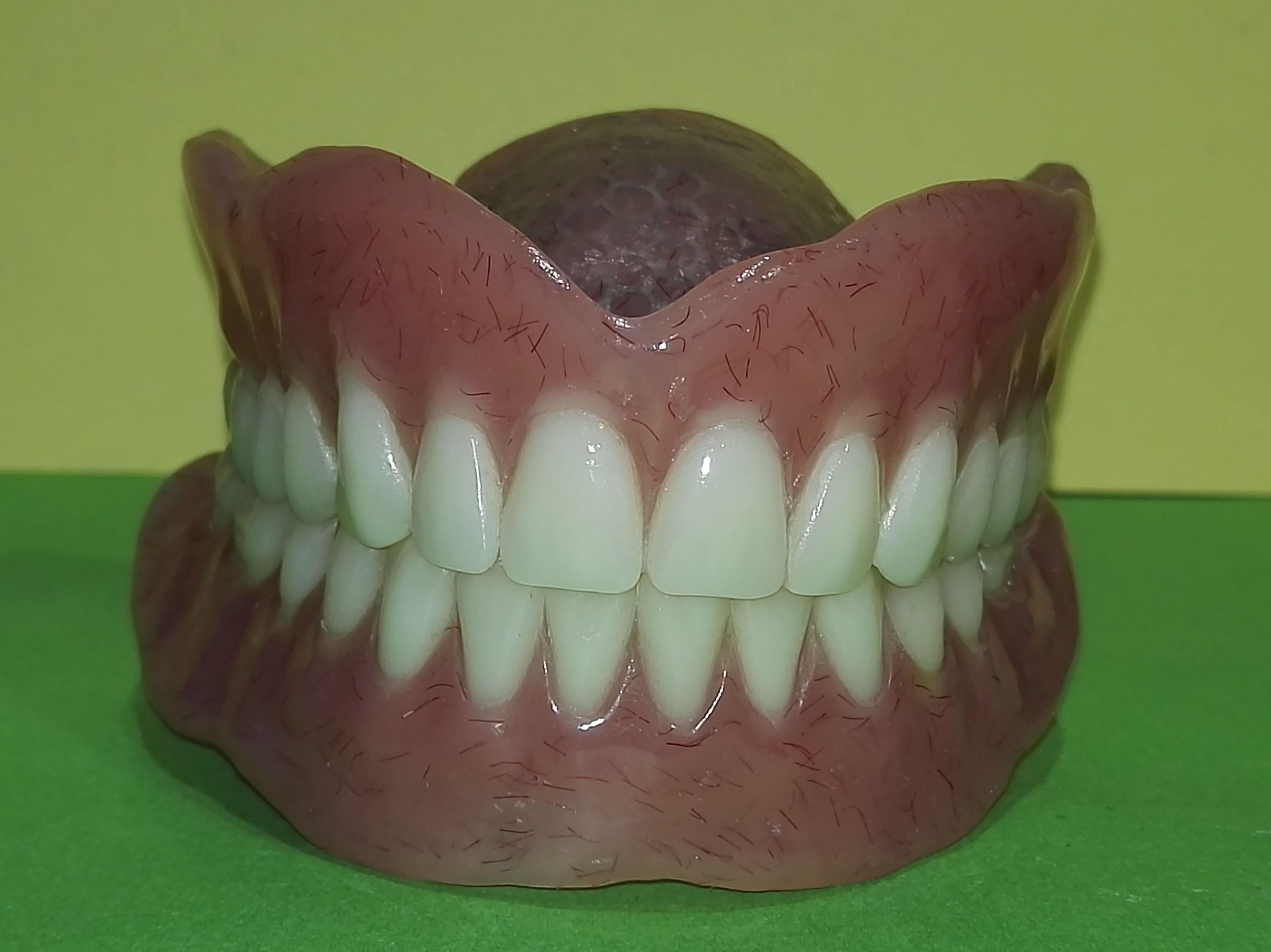 Foto 79 de Consulta de prótesis dentales en Jaén | Dental Tucci