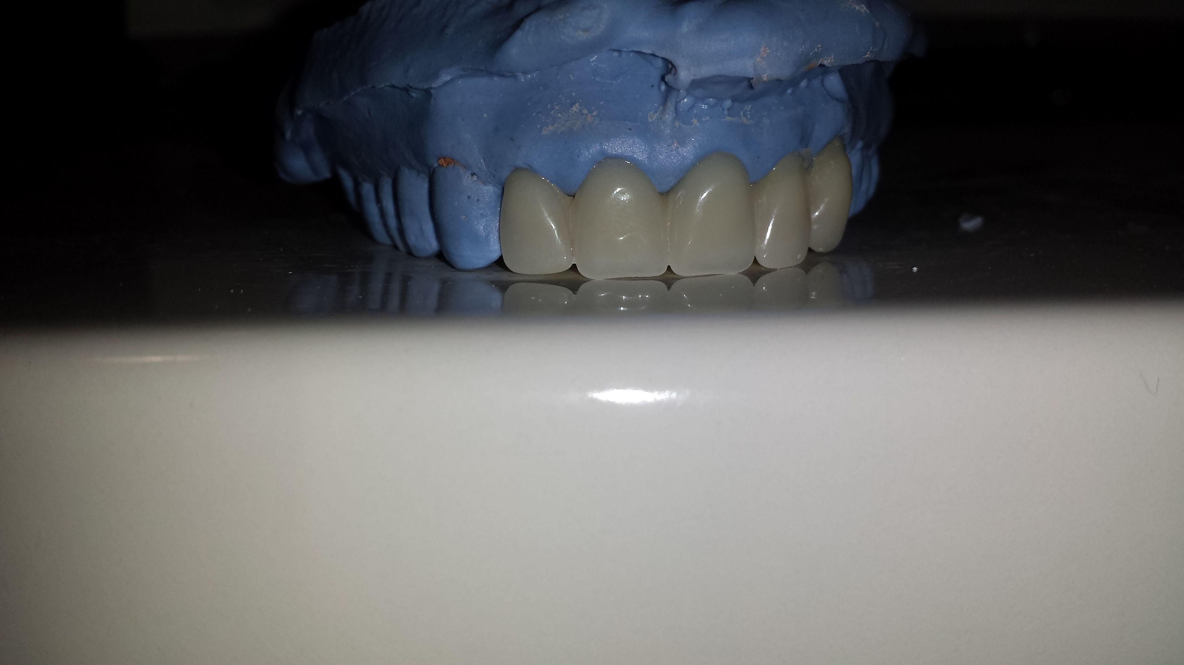 Foto 48 de Consulta de prótesis dentales en Jaén | Dental Tucci