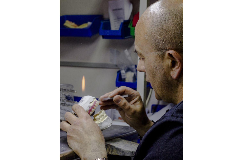 Fabricamos todo tipo de prótesis dentales