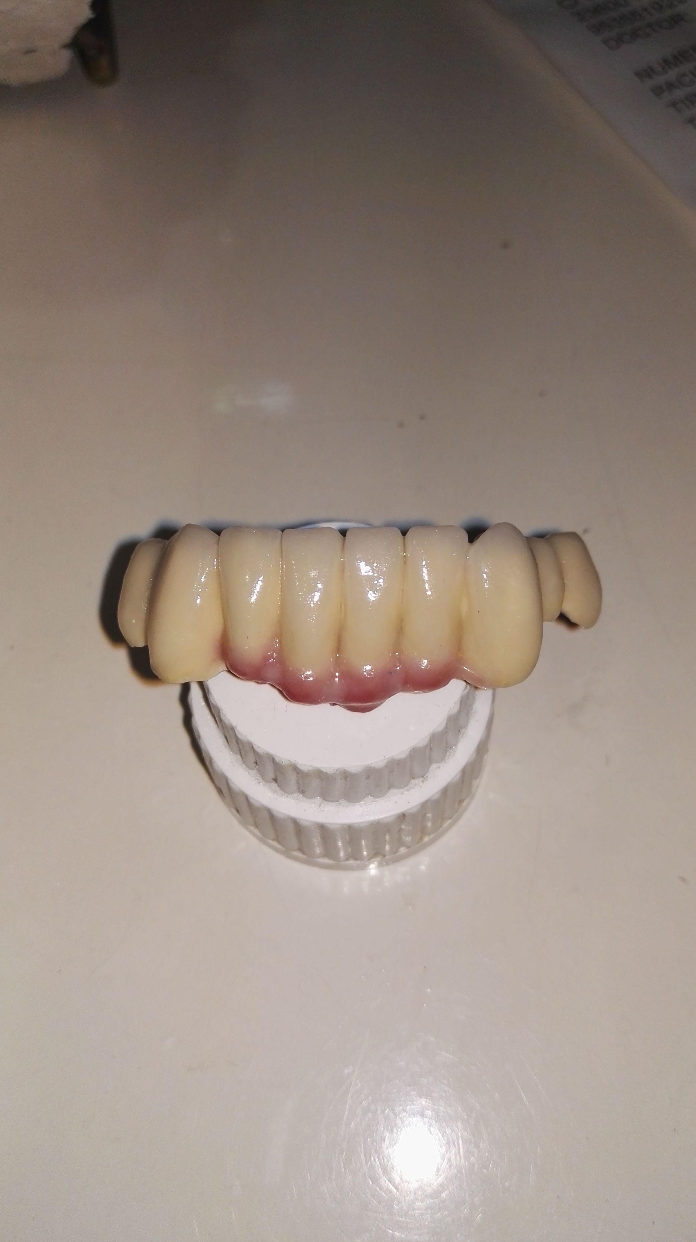 Foto 22 de Consulta de prótesis dentales en Jaén | Dental Tucci