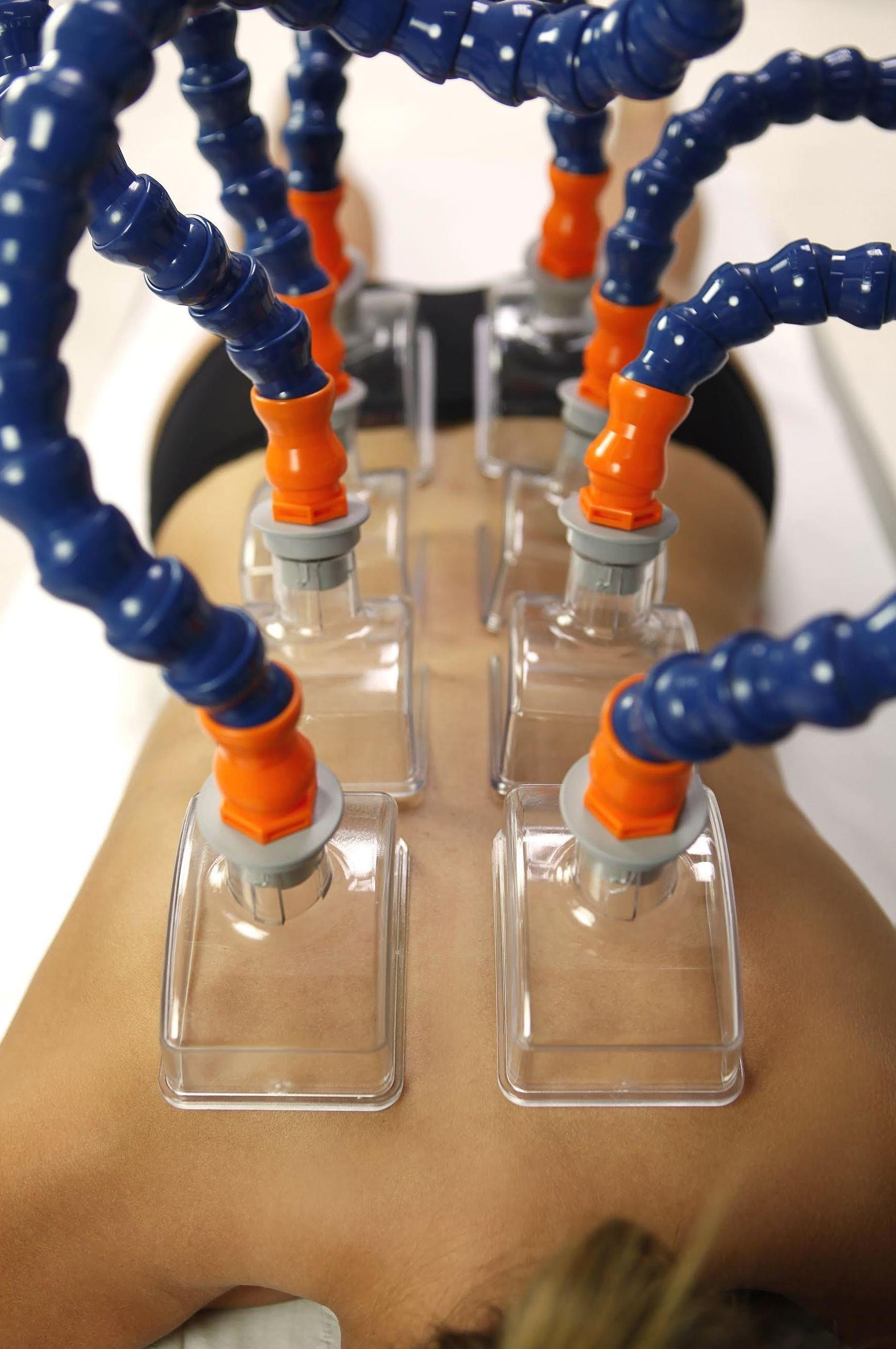 Formación de vendaje Neuromuscular para Fisioterapeutas en Madrid/cursos de vendaje nueromuscular para fisios en madrid