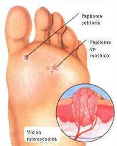 papilomavirus