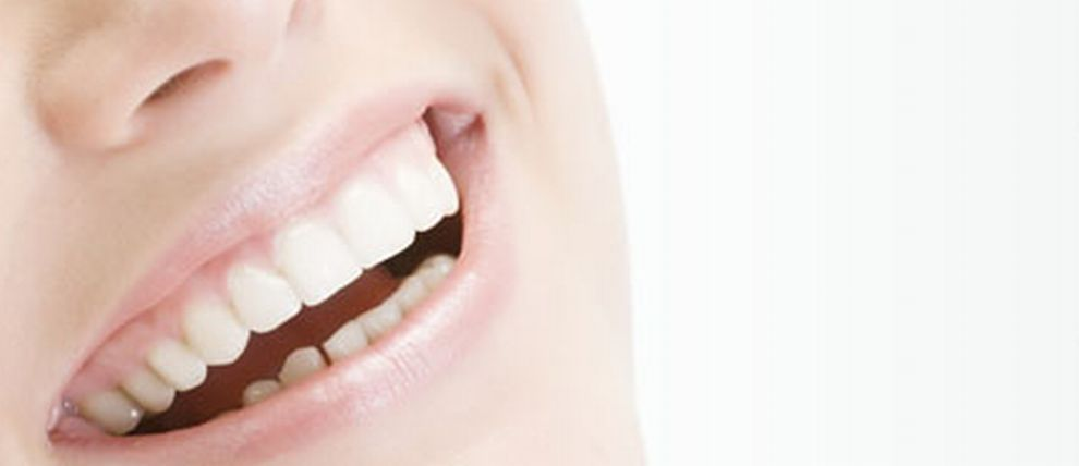 Blanqueamiento: Tratamientos de Clínica Dental Dr. Javier de Lorenzo-Cáceres Cullen