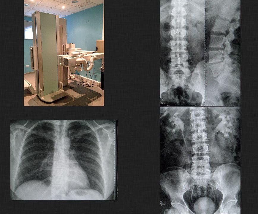 Foto 6 de Médicos especialistas Radiodiagnóstico en Sevilla | Gabinete de Imágenes Médicas