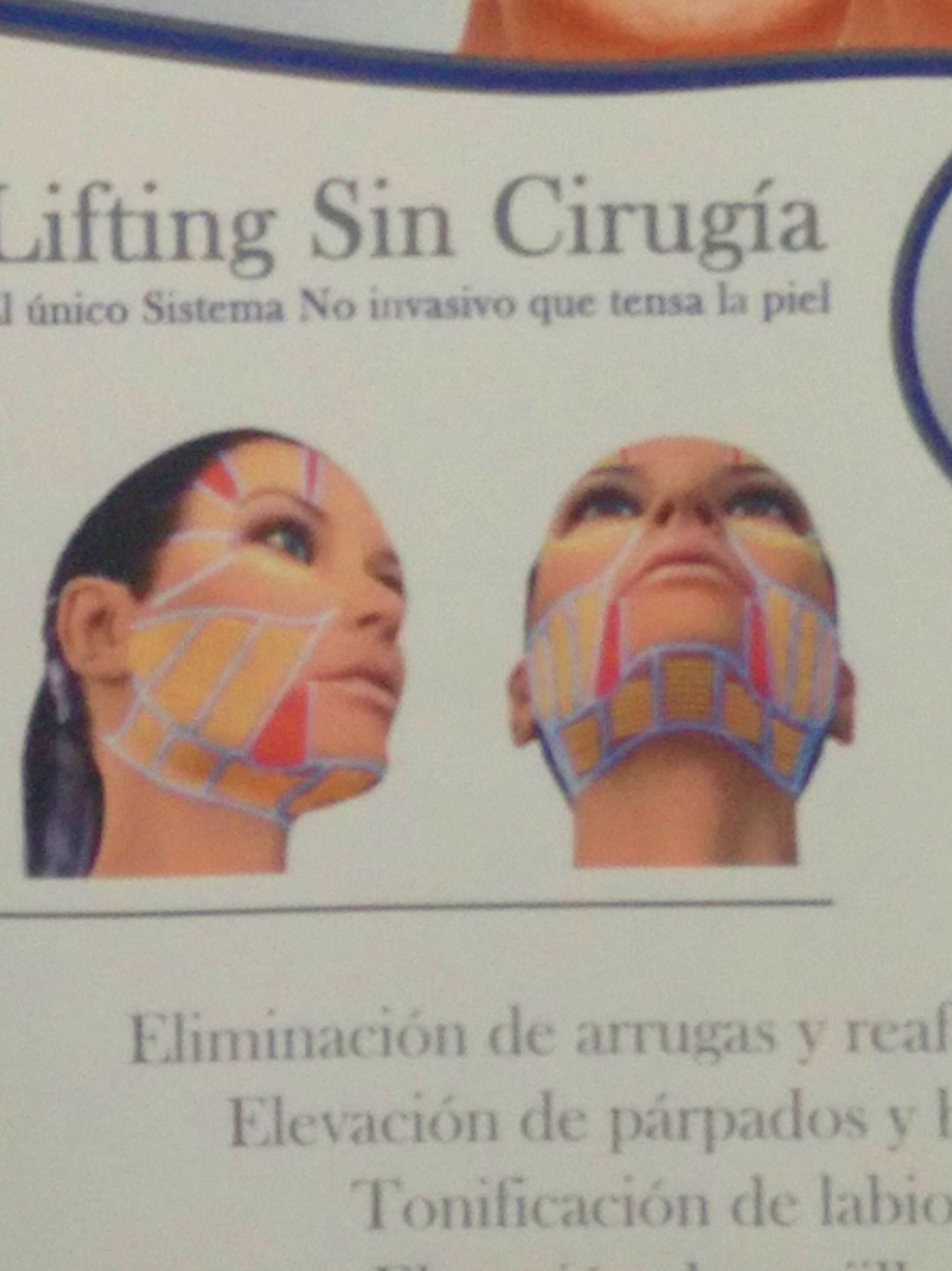 HIFU: Tratamientos de  Láser Cinco Sentidos