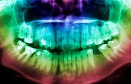 Radio Visiografia Digital ,RVG: Servicios de Clínica Dental Box Serrano