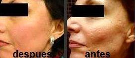 Eliminación de Manchas y Rejuvenecimiento Facial Alicante