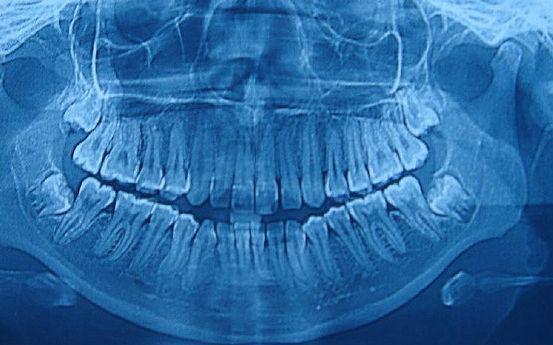 Radiología: Catálogo de Clínica Dental Cuesta y Ruisánchez, S.L.