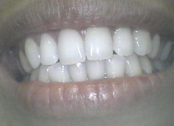 Estética : Catálogo de Clínica Dental Cuesta y Ruisánchez, S.L.