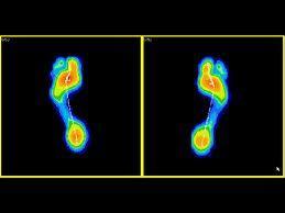 Análisis de marcha dinámica : Servicios de  Ortopedia de Ortopedia San Andrés