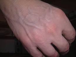 Prótesis estética de mano : Servicios de  Ortopedia de Ortopedia San Andrés