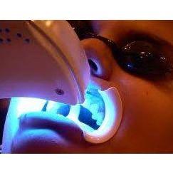 Blanqueamiento dental: Servicios de Pies y Manos