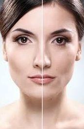 Peeling químico : Tratamientos de Pies y Manos