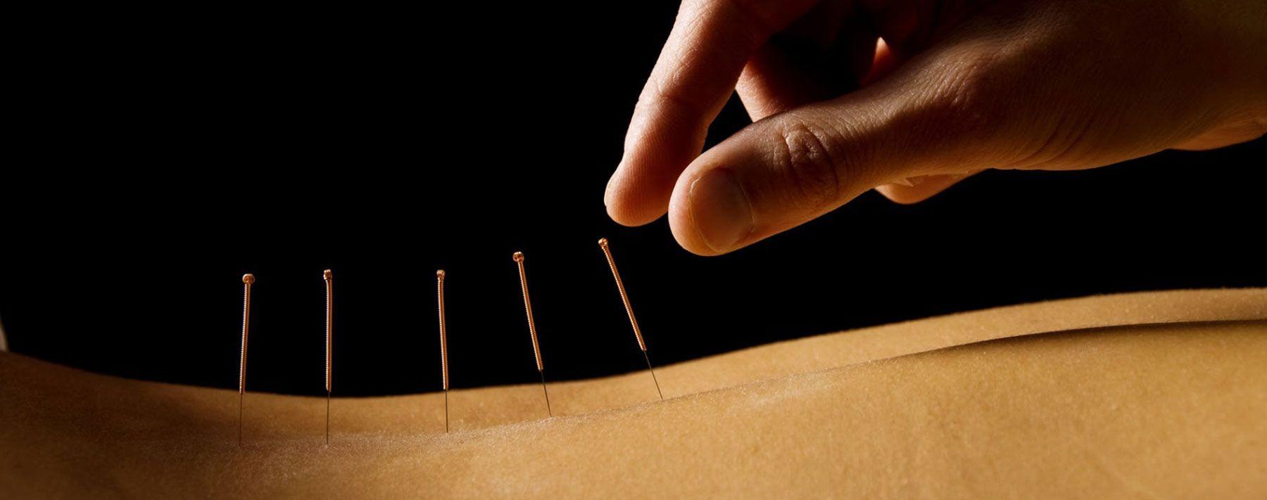 Tratamiento acupuntura Eixample Barcelona