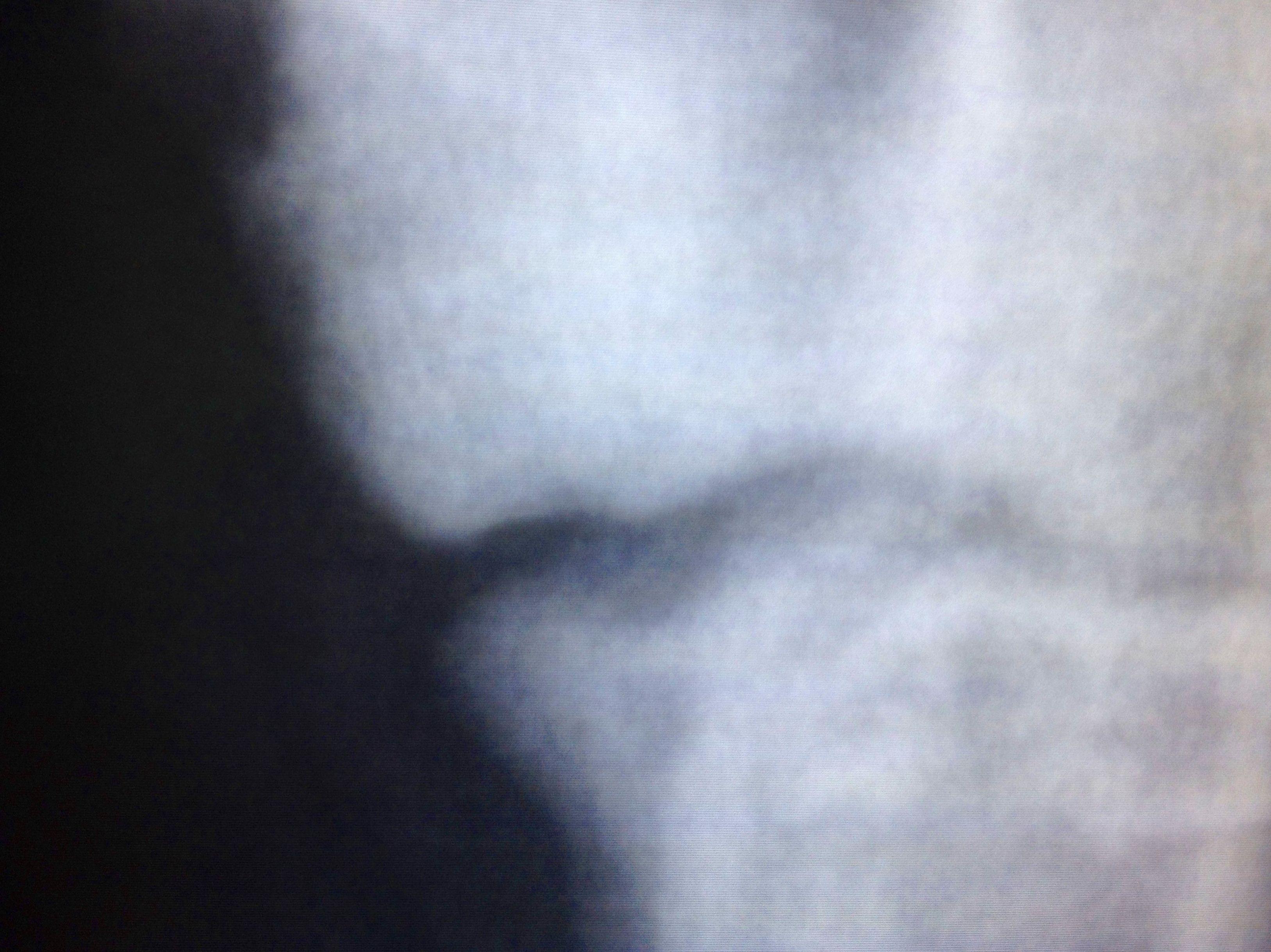 Osteocondritis disecante en el codo