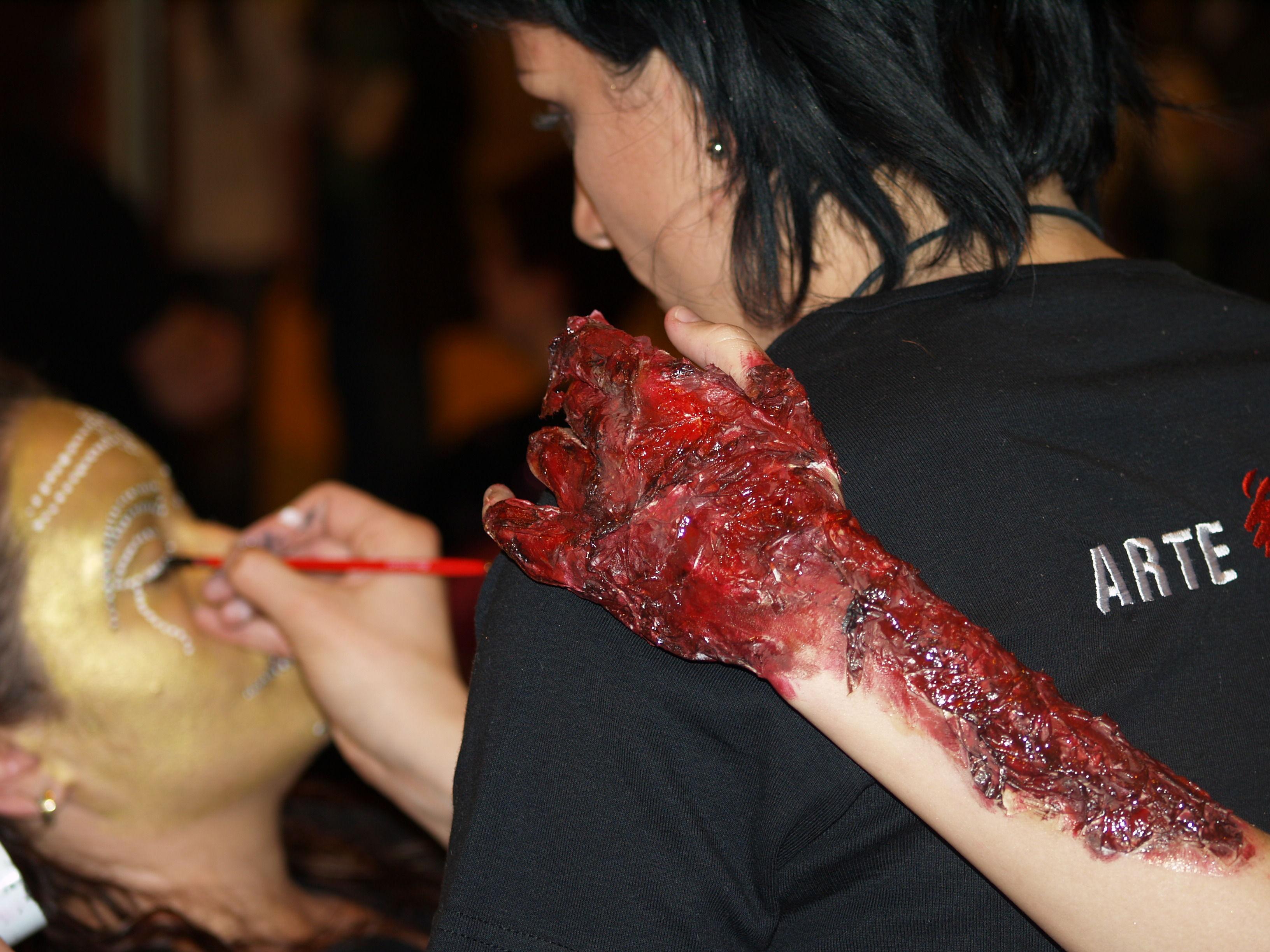 Caraterización Herida Quemadura