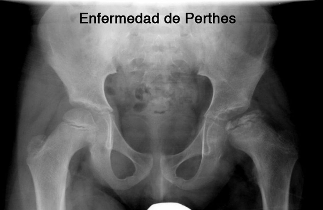 ENFERMEDAD DE PERTHES