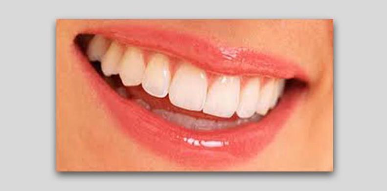 Estética y cosmética dental