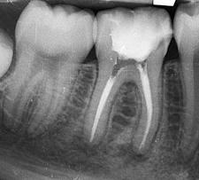 Endodoncia: Especialidades de Clínica Dental Dr. Santiago