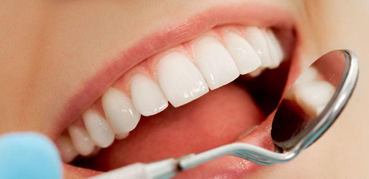 Endodoncia: CATÁLOGO de Clínica Dental Flordent