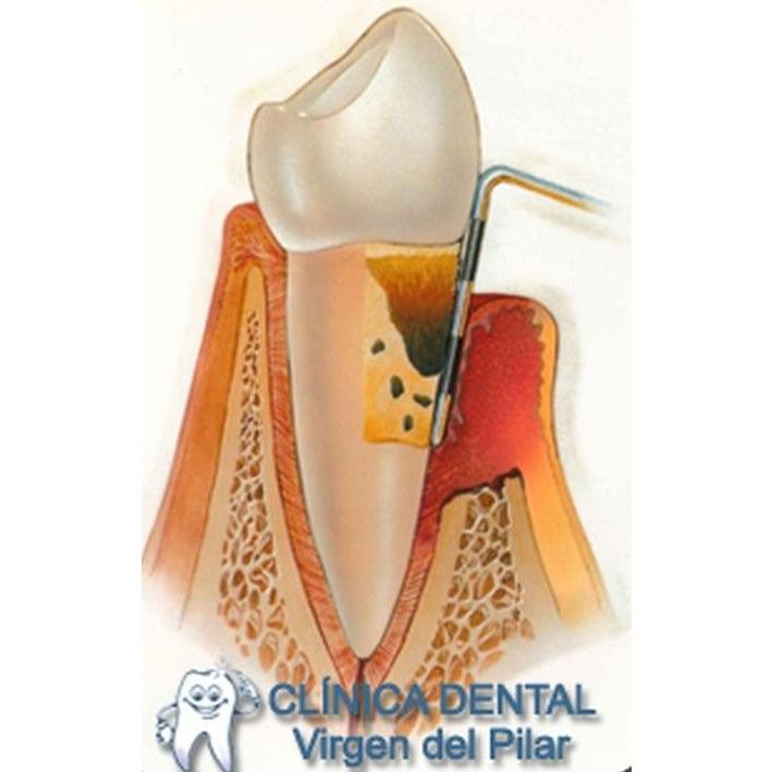 Periodoncia: Tratamientos de Clínica Dental Virgen del Pilar