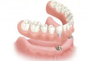Implantes dentales: Tratamientos de Clínica Dental Virgen del Pilar
