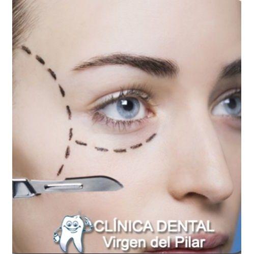 Blefaroplastia: Tratamientos de Clínica Dental Virgen del Pilar